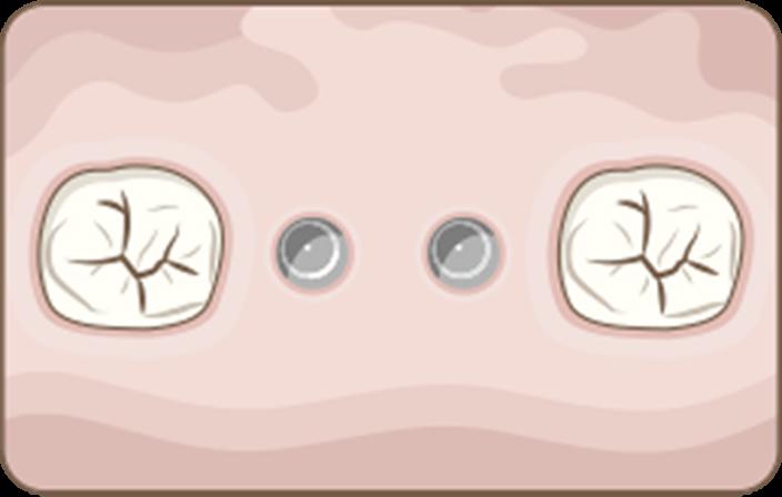 DIOnavi EcoDigital Implant Procedure